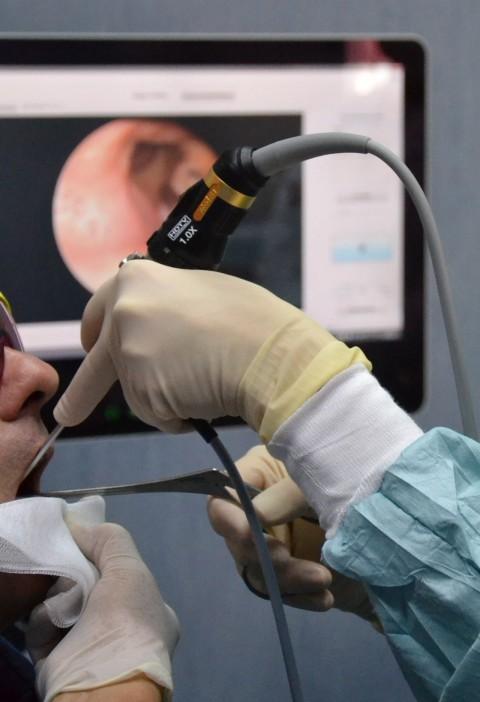 """Tumori del cavo orale, screening gratuito l'1 aprile """"Giornata della prevenzione"""" per la diagnosi precoce"""